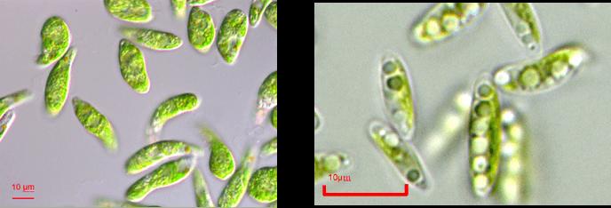 左:微細藻類ユーグレナ(和名:ミドリムシ)、右:微細藻類コッコミクサKJ